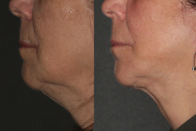BeautiFill™ Before & After