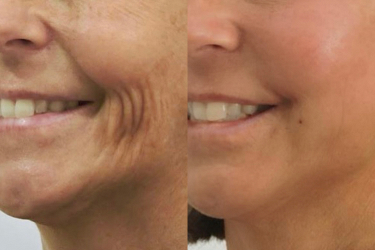 BeautiFill® Before & After